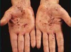 psoriasi malattia mani piaghe