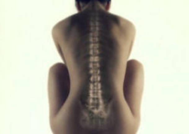 colonna vertebrale osteoporosi