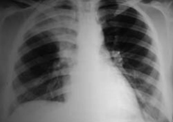 tubercolosi rx raggi polmoni