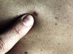 controllo nei melanoma