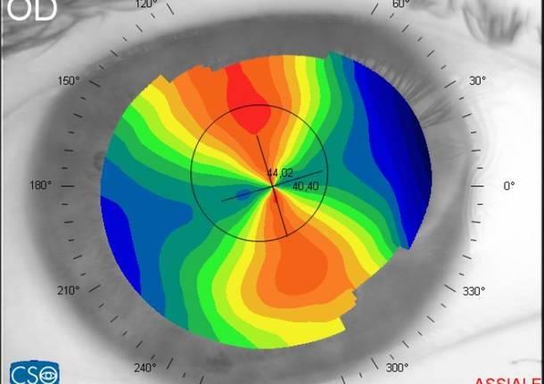topografia occhio malattie oculistica