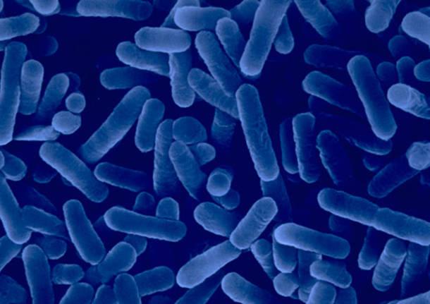 Legionella, ricoverati a Desio due Brianzoli
