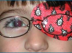 ambliopia : occhio pigro