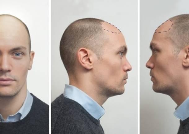 Per la caduta dei capelli uomo