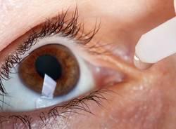 occhi glaucoma