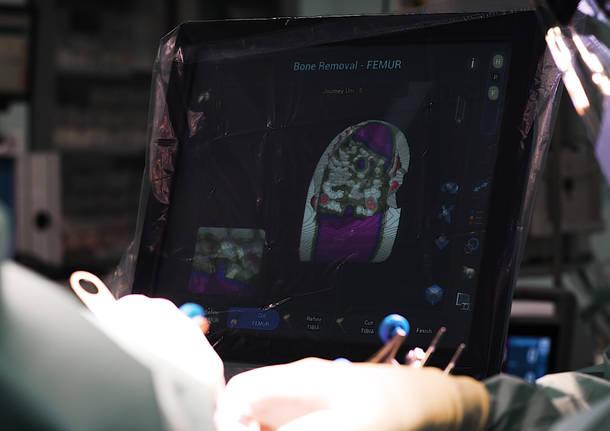 Humanitas Mater Domini: Intelligenza Artificiale per le protesi di ginocchio