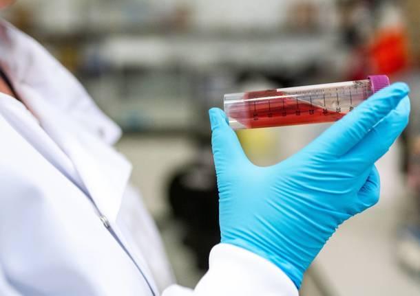 Coronavirus, 357 nuovi casi e 11 decessi in Fvg