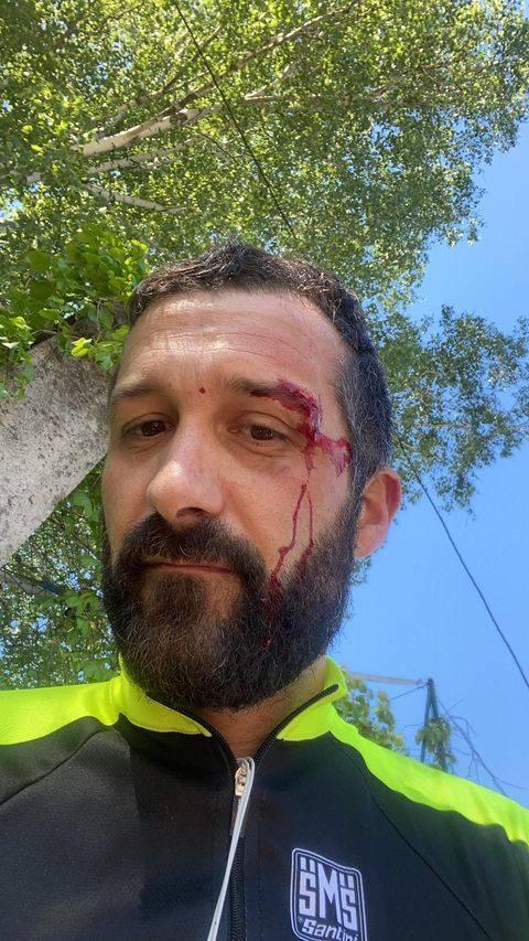 Voragine a Casciago caduta in bici